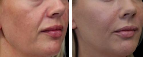 hyaluronsavas arcfeltöltés