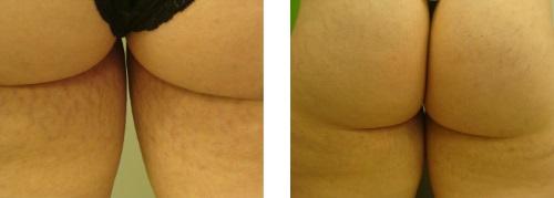 Stria kezelése - csíkok a bőrön
