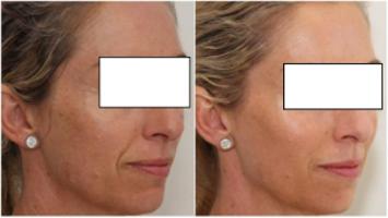 Botox előtte - utána