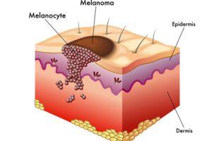 Festékes anyajegy eltávolítása - Alfa-Med Léezerklinika