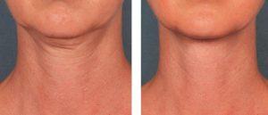 vékonyszálas kontúrterápia