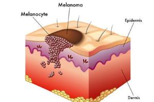 Bőrgyógyászat -anyajegyvizsgálat - melanomaszűrés