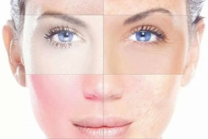 Bőrgyógyászat - Rosacea kezelése