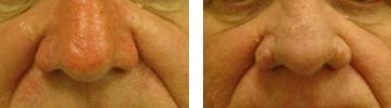 Rhynophyma kezelése - Alfa-Med Lézerklinika