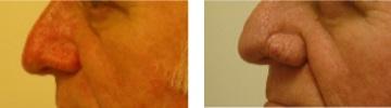 Rhinophyma - borvirágos orr kezelése