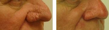 Rhynophyma - borvirágos orr kezelése