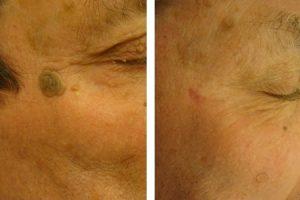 Szarus szemölcs eltávolítása - Alfa-Med Lézerklinika