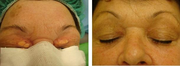 Xanthelasma - szemhéj körüli zsírcsomó lézeres eltávolítása