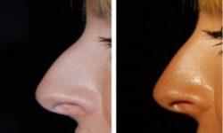 Műtét nélküli orrformázás