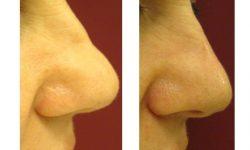 Műtét nélküli orrkorrekció