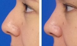 Műtét nélküli orrkorrekcoó