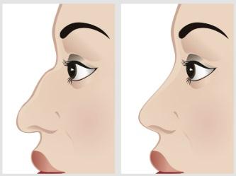 nem sebészeti orrkorrekció