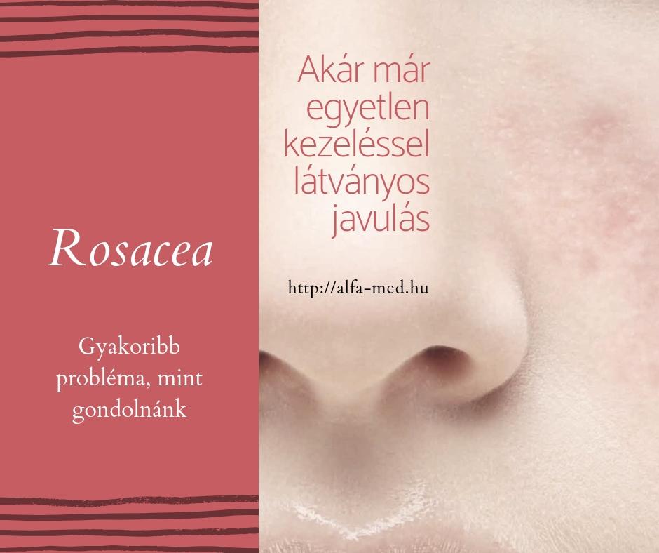 Rosacea lézeres kezelése